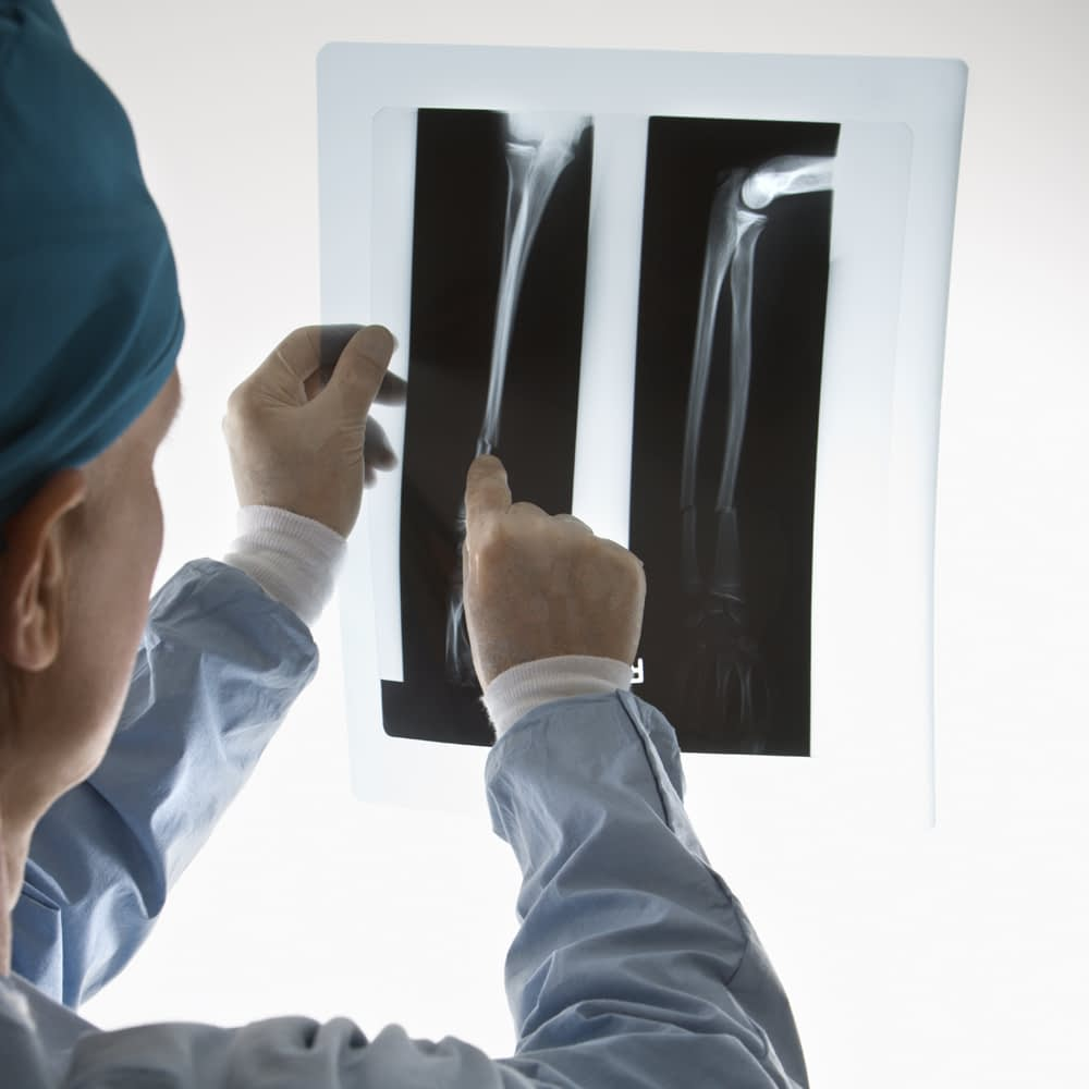 Selecting the Right Orthopedic Surgeon for Your Case