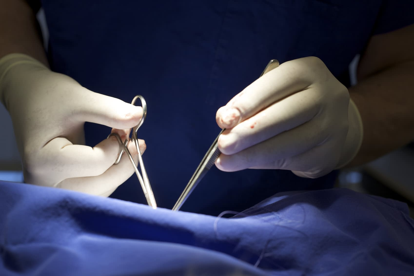 Kidney Transplants And The Urology Expert
